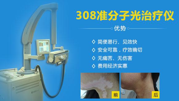 308nm准分子光治疗体系